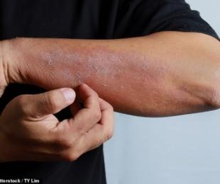 Skuqja dhe irritimi i lëkurës, simptomë që tregon se mund të jeni prekur nga COVID-19